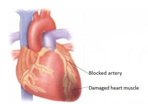 HEART-ATTACK.1